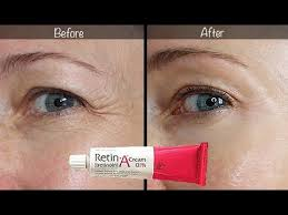 5 year retin a update before after for wrinkles anti aging