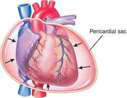 pericardial sac cardiac tamponade definition of cardiac tamponade by medical