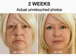 cream that works like botox truvisage face cream better than botox scam review travel chairman