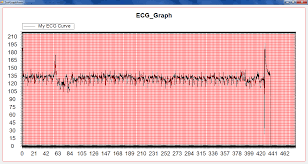 Zedgraph Display Of Ecg And Copy Paper Mobile Ecg Images_