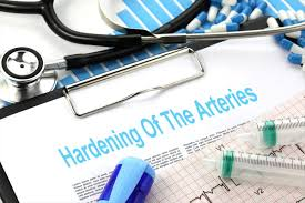 Hardening Of The Arteries - Free ...