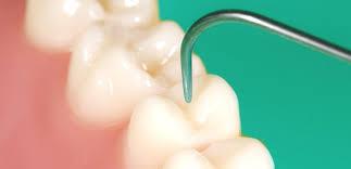 dental onlay wollaton dental care onlays