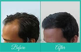 Male Or Female Pattern Baldness Treatments Adorable Best Treatment For Hair Fall In Pune Effective Hair Loss Treatment