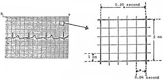 Ecg Chart Examples Ekg Interpretation