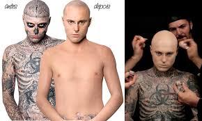 remover tatuagem em casa