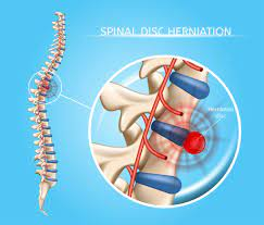 spine surgery herniated disc