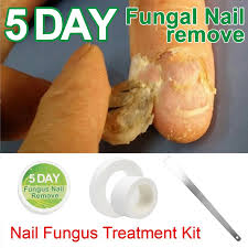 Toe Nail Fungus Treatment Anti Fungal Nail Infection Essence Nail Treatment  Removal Nail Care Lotion Toe Care Foot Care|Nail Art Equipment| - AliExpress