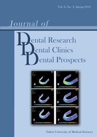 Maxillary Second Molar Nonsurgical Endodontic Retreatment Of Maxillary Second Molar With