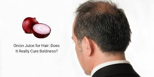 onion juice for hair does it really