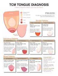 Tongue Analysis Chart 71 Veritable Tcm Tongue Diagnosis Chart