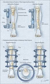 external fixator external fixation in orthopedics jama jama network
