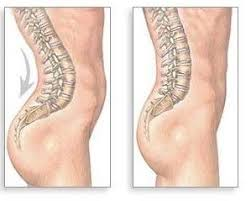 Image result for hyperlordosis