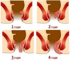 можно ли делать колоноскопию при воспаленном геморрое