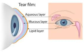 Doctors Note For Pink Eye Dry Eye