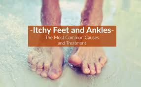 Itchy Feet and Ankles (Causes, Symptoms, Treatment)