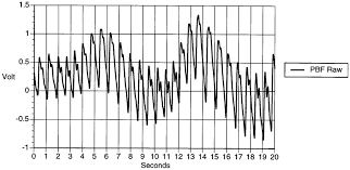 Peripheral Blood Flow Pbf Data Recorded With A
