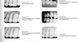 Реферат Применение волоконных штифтов в стоматологии  Применение волоконных штифтов в стоматологии
