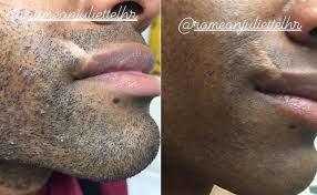 ingrown hair removal nyc ingrown