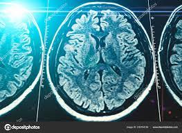 Blue Light Effect On Brain Mri Brain Scan Background Magnetic Resonance Tomography