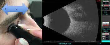 「ophthalmic ultrasound」の画像検索結果