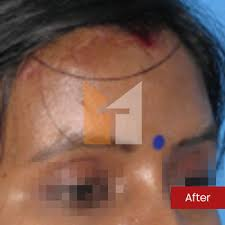 forehead reduction prof dr mohan