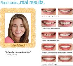 Instasmile Color Chart Before And After Snap On Smile
