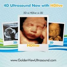 3d ultrasound bronx ny. Simple Ultrasound Photo Of Goldenview Ultrasound 3d4dHD NYC  New York NY Inside 3d Bronx Ny