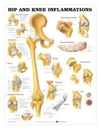 Hip Knee Chart Hip And Knee Inflammations Laminated Lfa 99781
