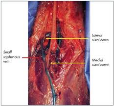 Small Saphenous Vein Interventional Treatment Servier
