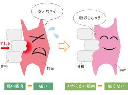 「腰椎すべり症」の画像検索結果