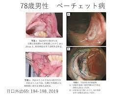 陰部 潰瘍 と は