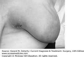 Breast Disorders | CURRENT Diagnosis & Treatment: Surgery, 14e ...