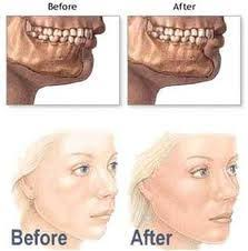 Chin Implant Size Chart 10 Best Cosmetic Surgery Images Plastic Surgery Surgery