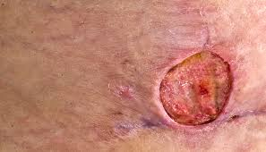 Mercers Disease Buruli Ulcer Better Health Channel