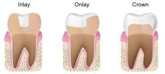 Dental Inlay Inlays And Onlays Clarksville Tn Dental Crowns Dental