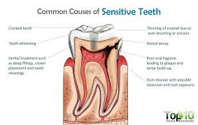 what is good for sensitive teeth