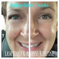 Rodan and Fields Executive Consultant - Posts | Facebook