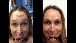 Can you get a facial after botox