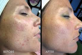 Image result for chemical peel before and after