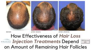 why prp and prp acell treatments for hair loss need viable hair follicles to work you