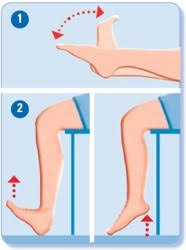 Bekkenbodemproblemen bij vrouwen - Patiëntenfolders - 7911