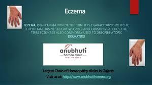 Eczema dermatitis homeopathy treatment
