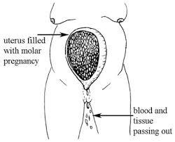 Uterus Measurement Chart During Pregnancy Antenatal Care Module 10 Estimating Gestational Age From