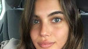 הדוגמנית שלומית מלכה נפצעה קשה בתאונה בתל אביב