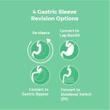 gastric byp and gastric sleeve