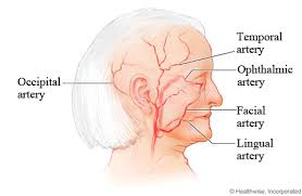 arteries of the face arteries commonly affected by giant cell arteritis