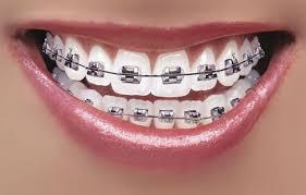 Orthodontic Braces Dentist Tools Equipment Supplies Pure