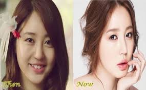 korean actresses plastic surgery before after plastic surgery the korean actress yoon eun hye best korean actresses plastic surgery before and after