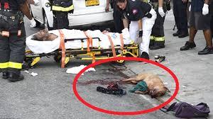 pitbull dog attacks man. Brilliant Man Dog Attacks Pit Bull Attacks Homeless Man Mom Bites Off Dogu0027s Ear To Save  Daughter  Compilation YouTube To Pitbull Attacks Man A