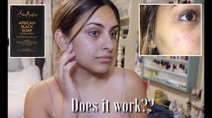 <b>Shea Moisture African Black</b> Soap Review   Skin Care - YouTube